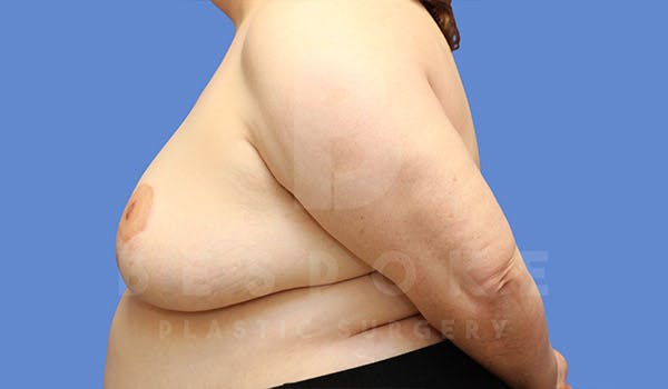 Breast Revision Surgery Gallery - Patient 4657433 - Image 5