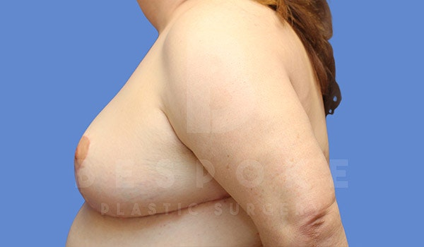 Breast Revision Surgery Gallery - Patient 4657433 - Image 6