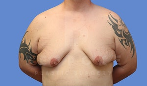 Before & After Gynecomastia Surgery Charlotte NC