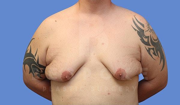 Gynecomastia Gallery - Patient 4657447 - Image 1