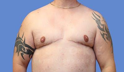 Gynecomastia Gallery - Patient 4657447 - Image 2