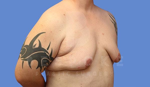 Gynecomastia Gallery - Patient 4657447 - Image 3