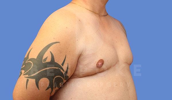 Gynecomastia Gallery - Patient 4657447 - Image 4