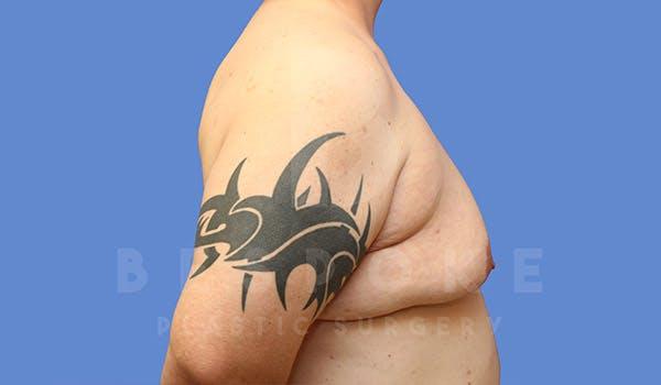 Gynecomastia Gallery - Patient 4657447 - Image 5