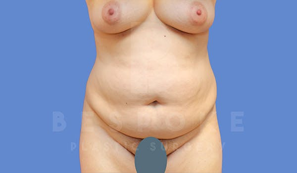 Tummy Tuck Gallery - Patient 4657455 - Image 1