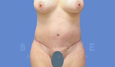 Tummy Tuck Gallery - Patient 4657455 - Image 2