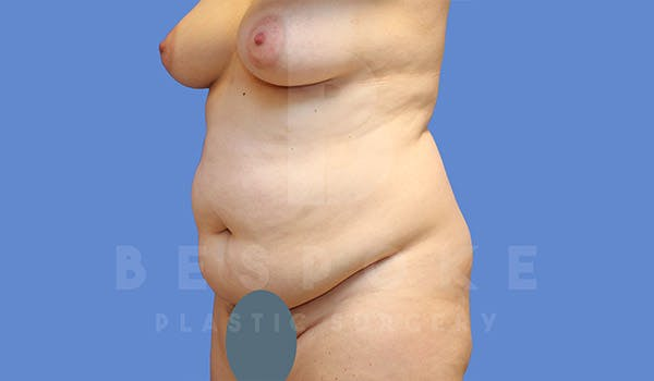 Tummy Tuck Gallery - Patient 4657455 - Image 3