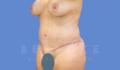 Tummy Tuck Gallery - Patient 4657455 - Image 4