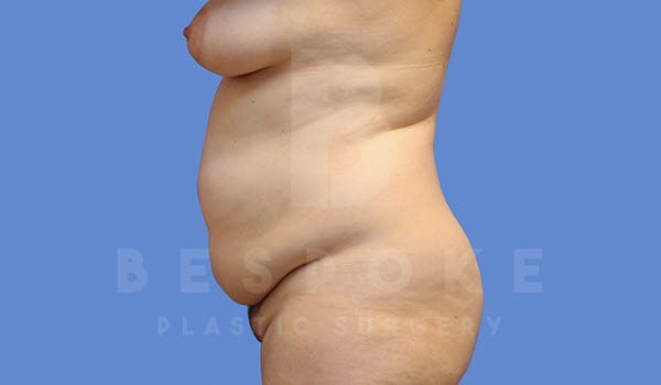 Tummy Tuck Gallery - Patient 4657455 - Image 5