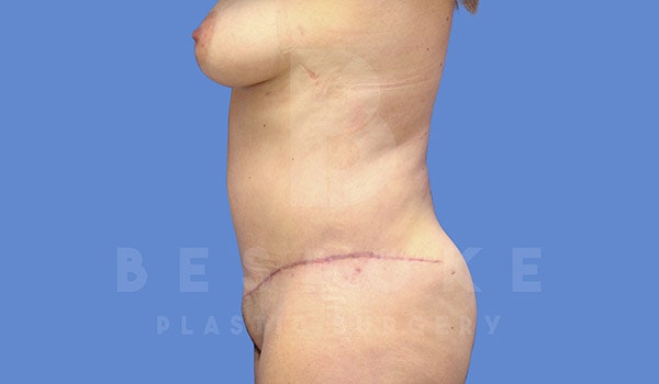Tummy Tuck Gallery - Patient 4657455 - Image 6