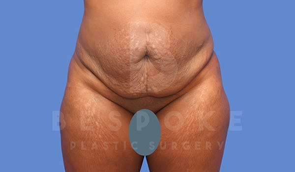 Tummy Tuck Gallery - Patient 4657458 - Image 1