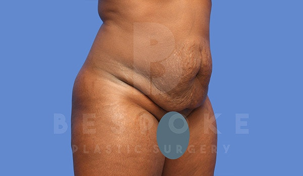 Tummy Tuck Gallery - Patient 4657458 - Image 3