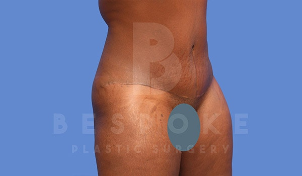 Tummy Tuck Gallery - Patient 4657458 - Image 4