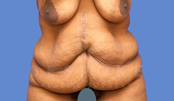 Massive Weight Loss Gallery - Patient 4657474 - Image 1