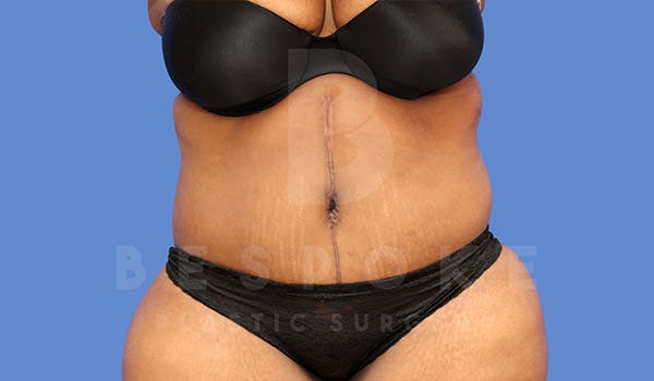 Massive Weight Loss Gallery - Patient 4657474 - Image 2