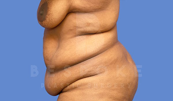 Massive Weight Loss Gallery - Patient 4657474 - Image 3