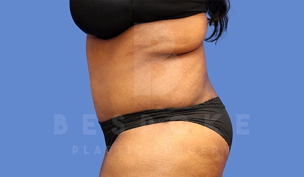 Massive Weight Loss Gallery - Patient 4657474 - Image 4