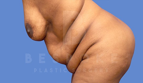 Massive Weight Loss Gallery - Patient 4657474 - Image 5