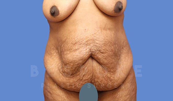 Massive Weight Loss Gallery - Patient 4657475 - Image 1