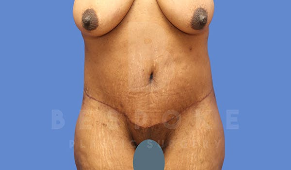 Massive Weight Loss Gallery - Patient 4657475 - Image 2
