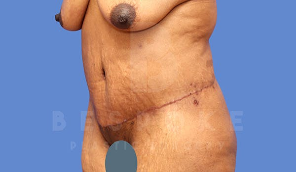 Massive Weight Loss Gallery - Patient 4657475 - Image 4