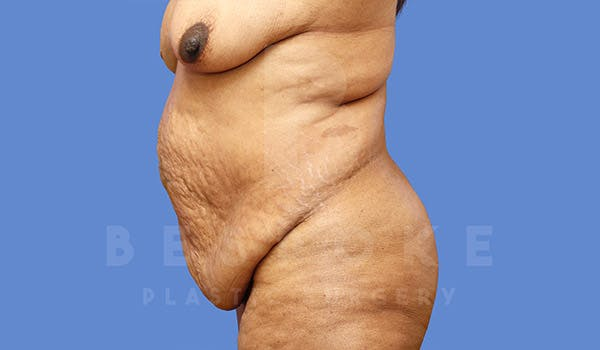 Massive Weight Loss Gallery - Patient 4657475 - Image 5