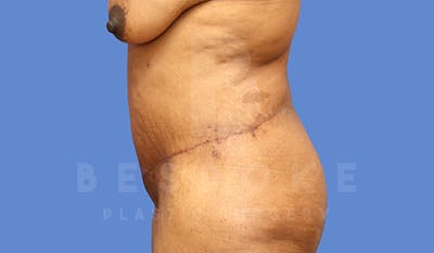 Massive Weight Loss Gallery - Patient 4657475 - Image 6