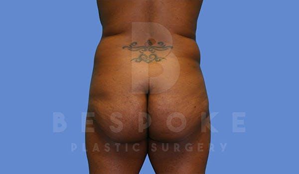 Brazilian Butt Lift Gallery - Patient 4657484 - Image 1