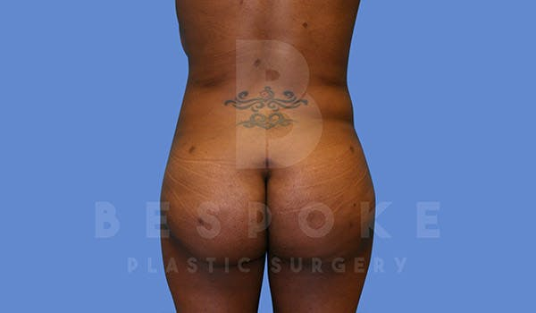 Brazilian Butt Lift Gallery - Patient 4657484 - Image 2