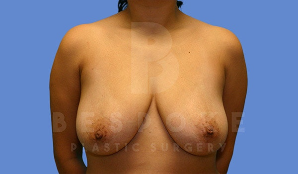 Mommy Makeover Gallery - Patient 4657485 - Image 1