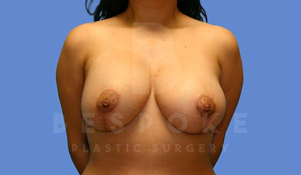 Mommy Makeover Gallery - Patient 4657485 - Image 2