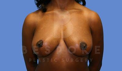Mommy Makeover Gallery - Patient 4657486 - Image 2
