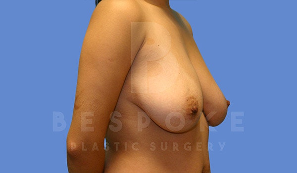 Mommy Makeover Gallery - Patient 4657485 - Image 3