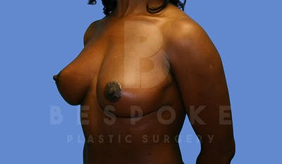 Mommy Makeover Gallery - Patient 4657486 - Image 4