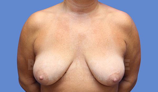 Mommy Makeover Gallery - Patient 4657487 - Image 4