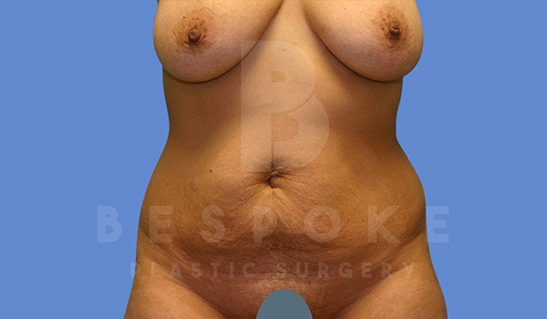 Mommy Makeover Gallery - Patient 4657485 - Image 5