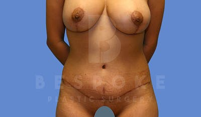 Mommy Makeover Gallery - Patient 4657485 - Image 6