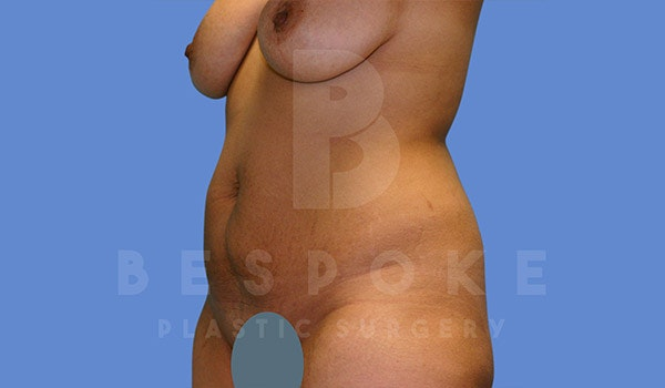 Mommy Makeover Gallery - Patient 4657485 - Image 7