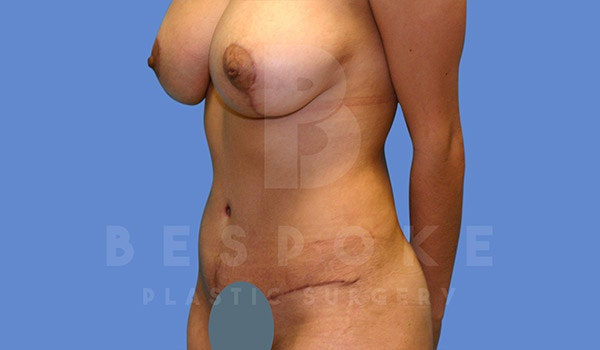 Mommy Makeover Gallery - Patient 4657485 - Image 8