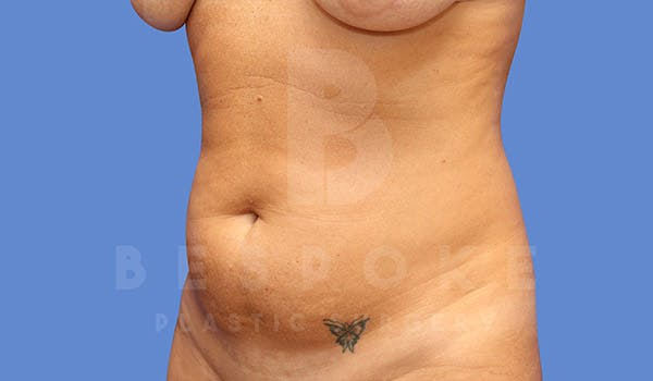 Mommy Makeover Gallery - Patient 4657487 - Image 5