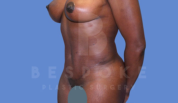 Mommy Makeover Gallery - Patient 4657486 - Image 8