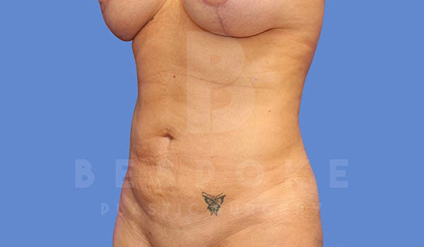 Mommy Makeover Gallery - Patient 4657487 - Image 6