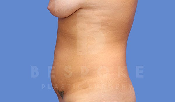 Mommy Makeover Gallery - Patient 4657487 - Image 7