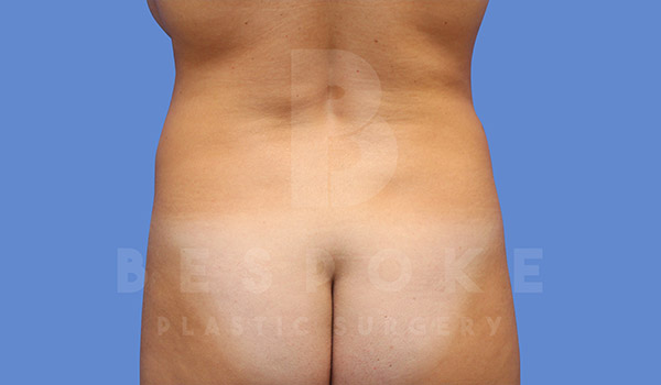 Liposuction Gallery - Patient 4657489 - Image 1