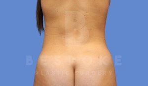 Liposuction Before & After Photos Charlotte NC