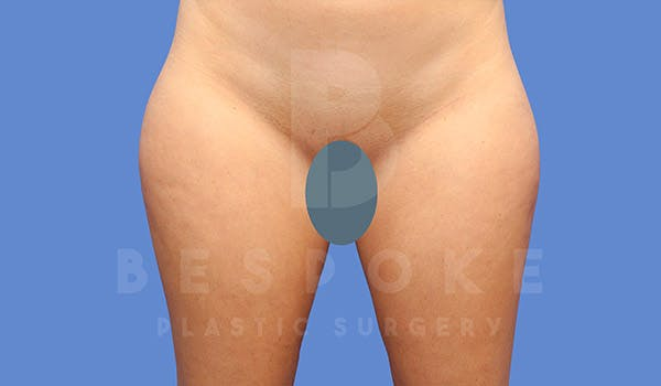 Liposuction Gallery - Patient 4657493 - Image 1