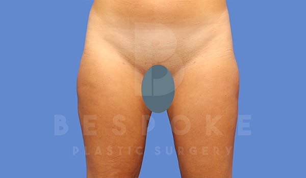 Liposuction Gallery - Patient 4657493 - Image 2