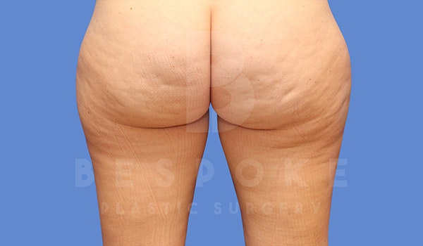 Liposuction Gallery - Patient 4657493 - Image 3