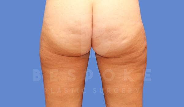 Liposuction Gallery - Patient 4657493 - Image 4