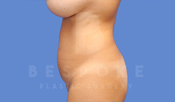 Liposuction Gallery - Patient 4657494 - Image 3